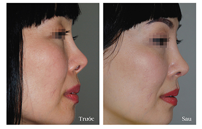 kết quả nâng mũi -megaderm-1