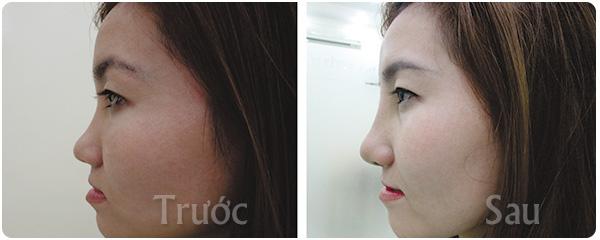 kết quả khi nâng mũi s-line 3d tại thẩm mỹ viện nguyễn du