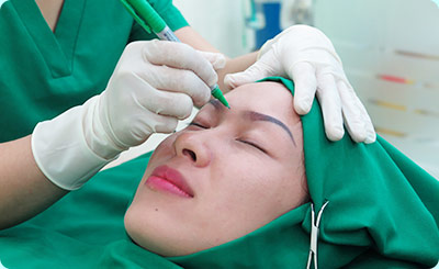 quy trình nâng mũi tại thẩm mỹ nguyễn du