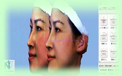 mắt thấy, tai nghe, kết quả thấy trước khi nâng mũi tại nguyễn du