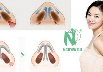 Thu gọn cánh mũi có ảnh hưởng gì không?