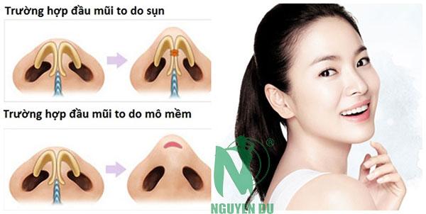 thu nhỏ lỗ mũi