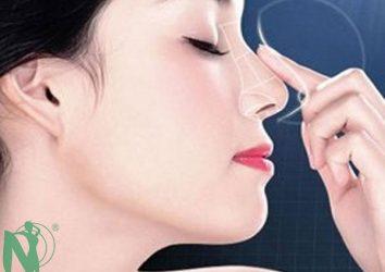 Nâng mũi có ảnh hưởng gì không?